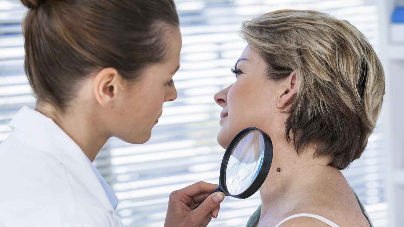 Sete dicas para evitar o câncer de pele